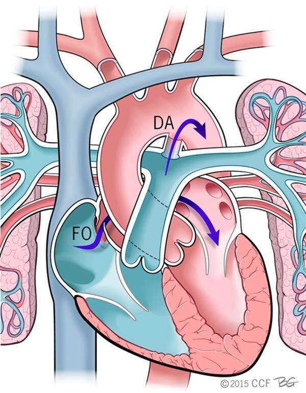 Niška Dečija interna klinika dobila aparat za pluća