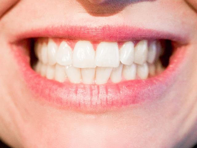 Kako do holivudskog osmeha?
